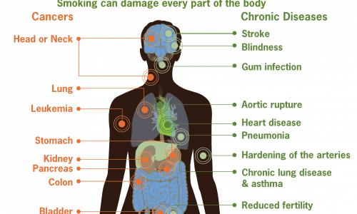 Les dangers du tabac